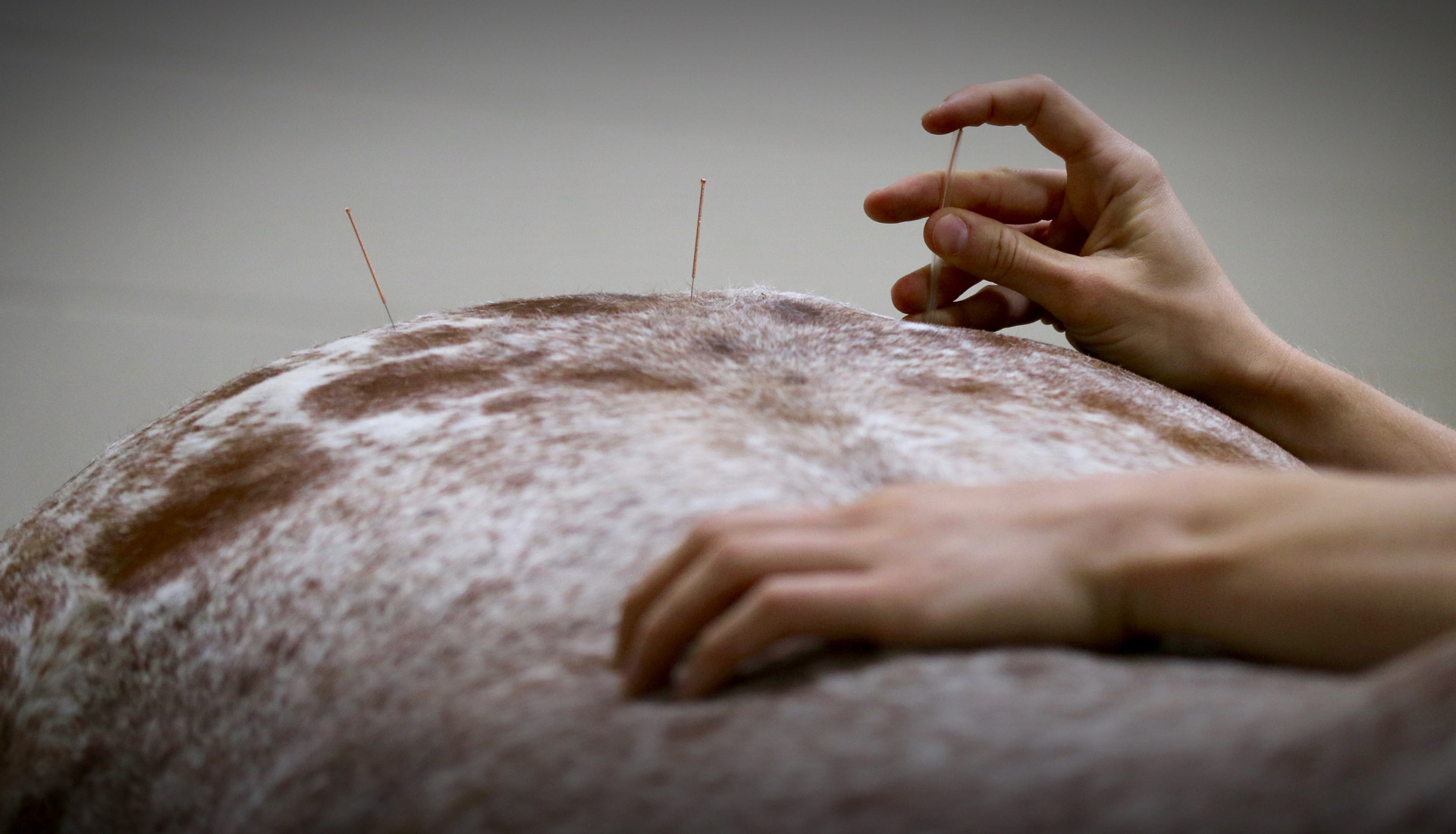 Pioneer Acupuncture